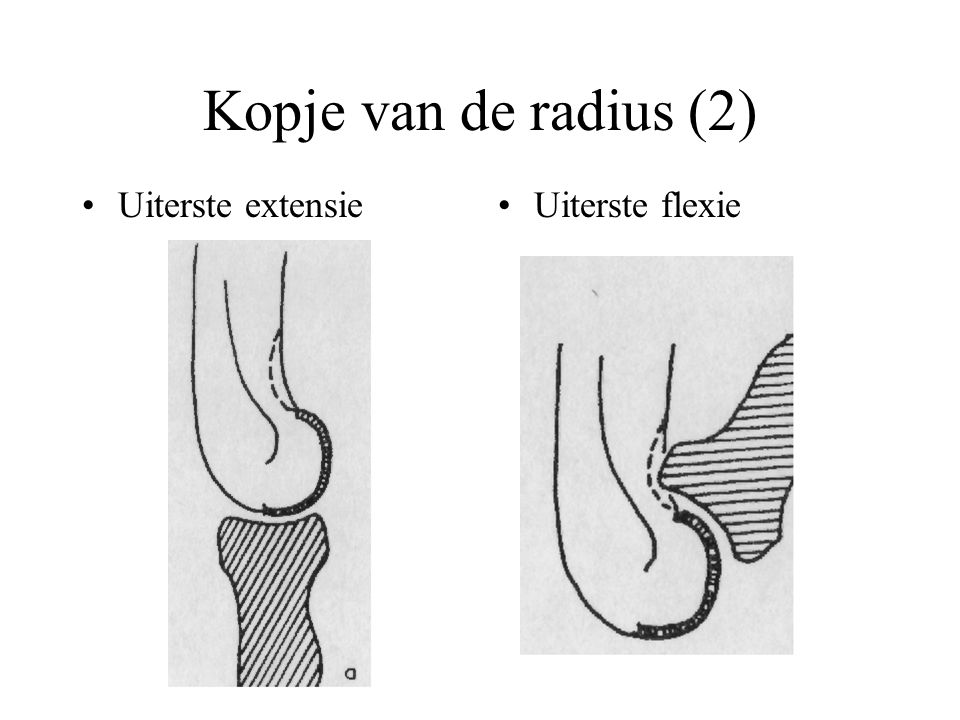 Kopje van de radius (2) Uiterste extensie Uiterste flexie