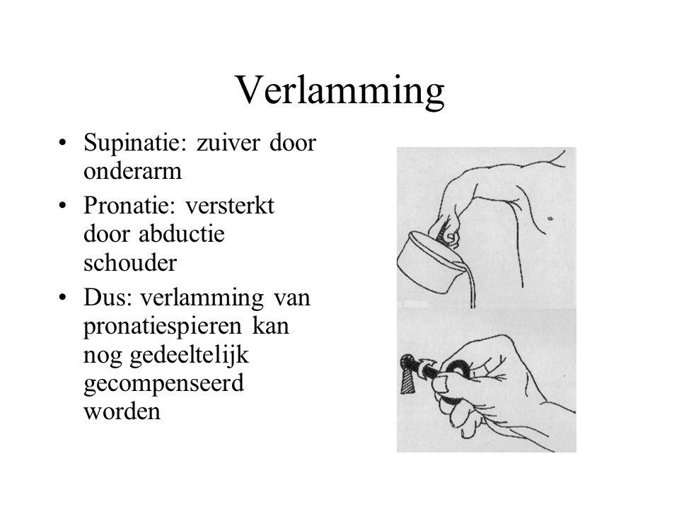 Verlamming Supinatie: zuiver door onderarm