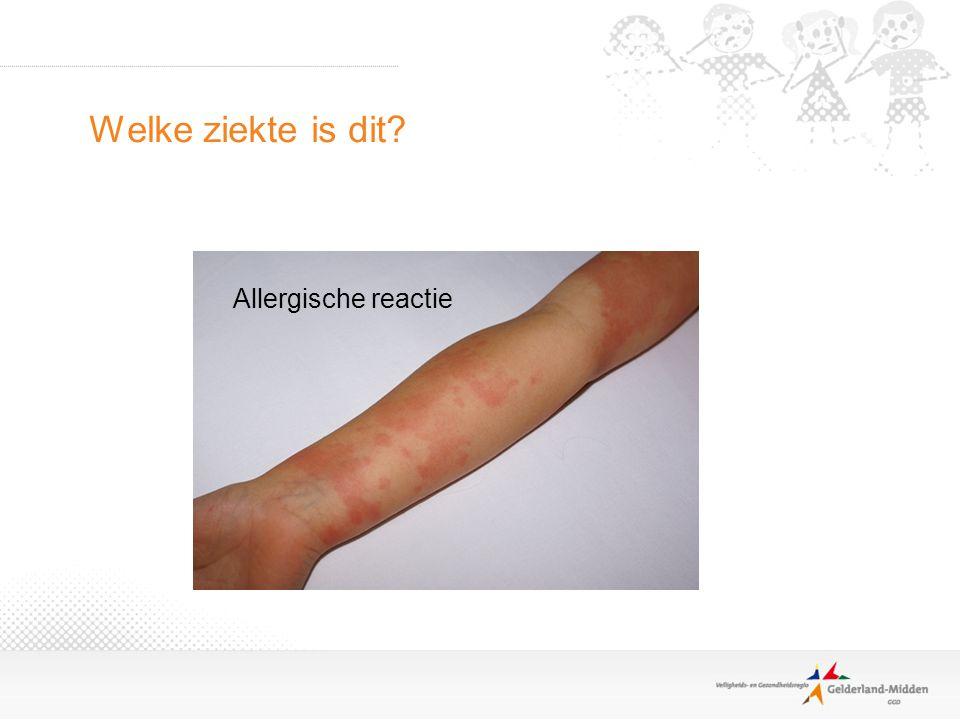 Welke ziekte is dit Allergische reactie