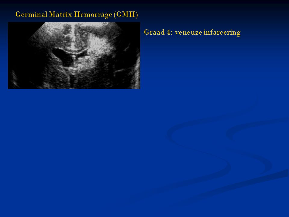 Germinal Matrix Hemorrage (GMH)