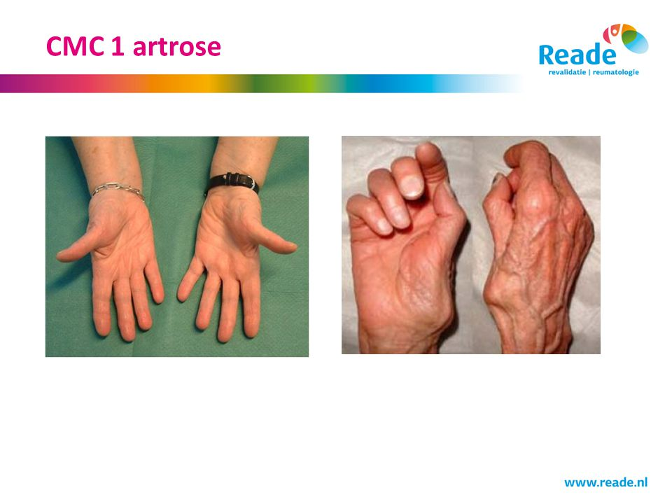 CMC 1 artrose