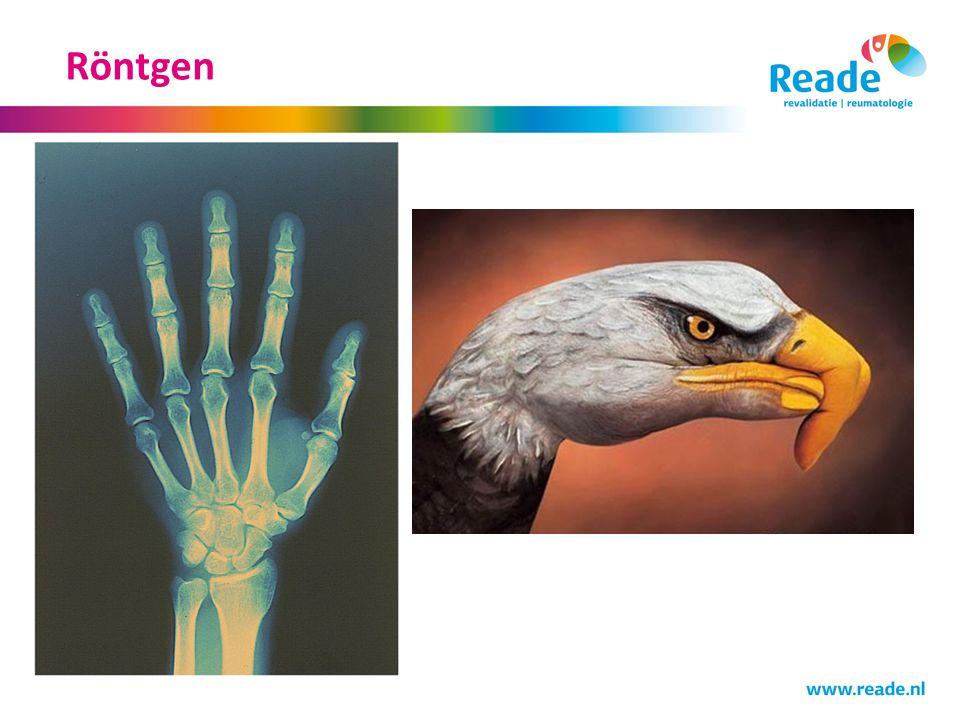 Röntgen Nu over naar rontgen onderzoek bij handartrose