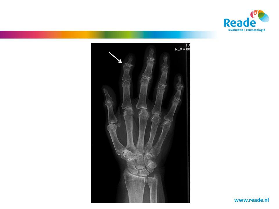 Bij het pijltje zie je een typische beeld van DIP artrose