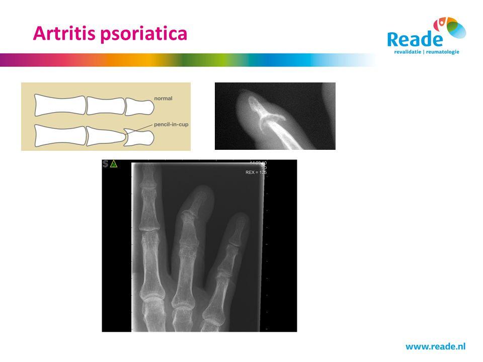 Artritis psoriatica Dit is een typisce afwijking zoals je kan zien bij artritis psoriatica de pencil in cup deformity.