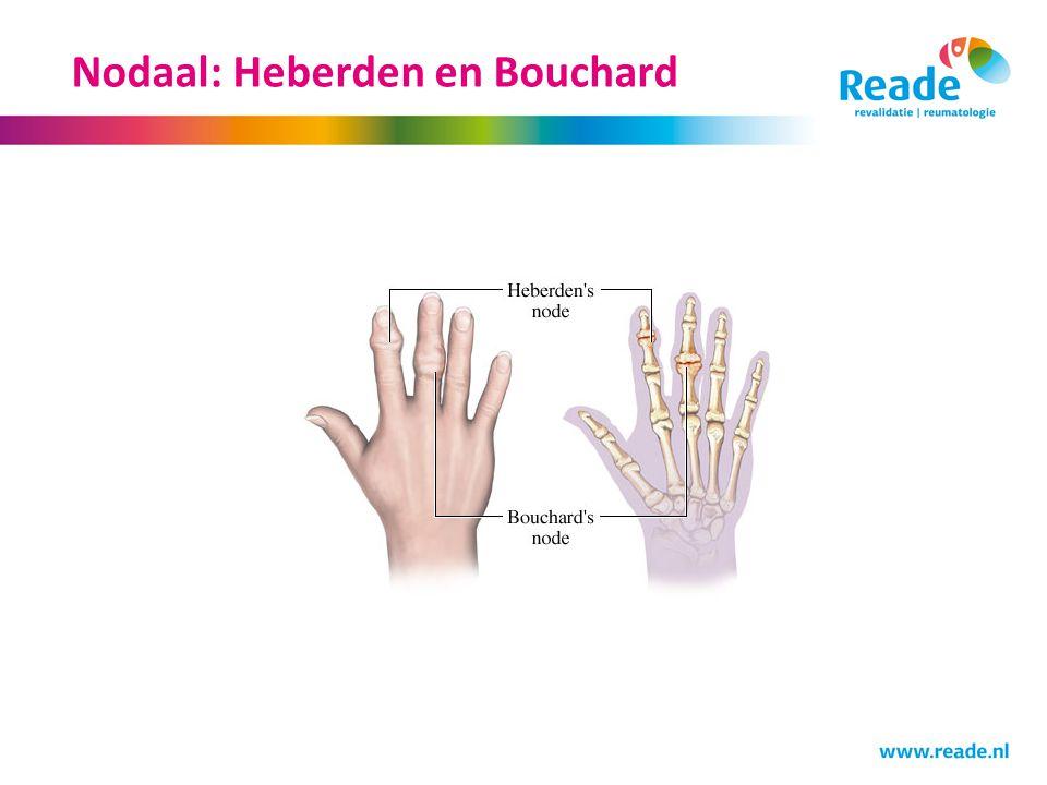 http://slideplayer.nl/2254742/9/images/7/Nodaal%3A+Heberden+en+Bouchard.jpg
