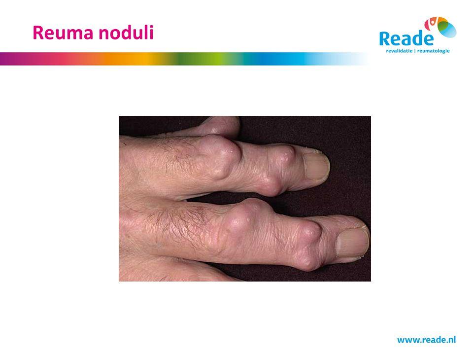 Reuma noduli Niet te verwarren met reuma noduli