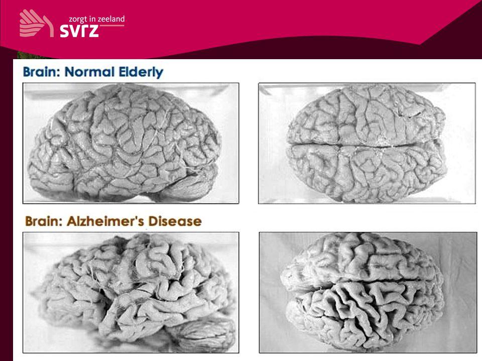 Ziekte van Alzheimer • opsomming 1 • opsomming 2 • opsomming 3