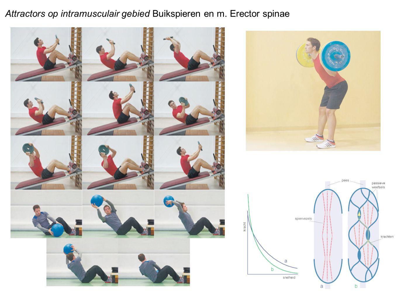 Attractors op intramusculair gebied Buikspieren en m. Erector spinae