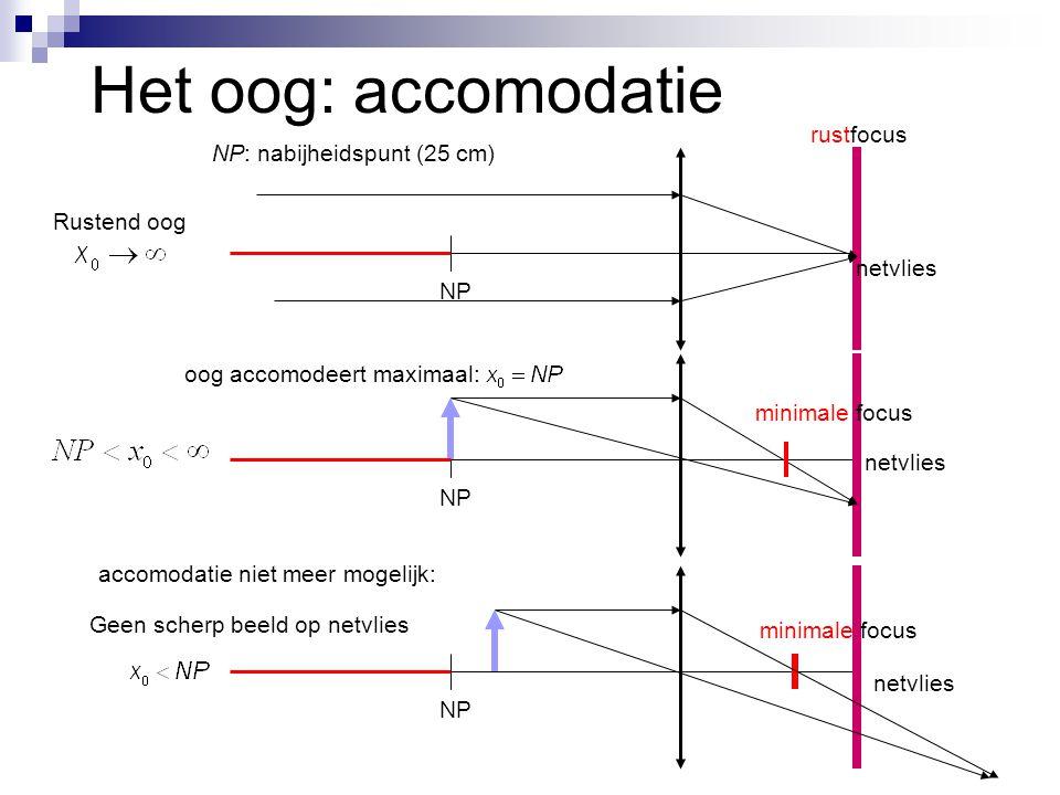 Het oog: accomodatie rustfocus NP: nabijheidspunt (25 cm) Rustend oog