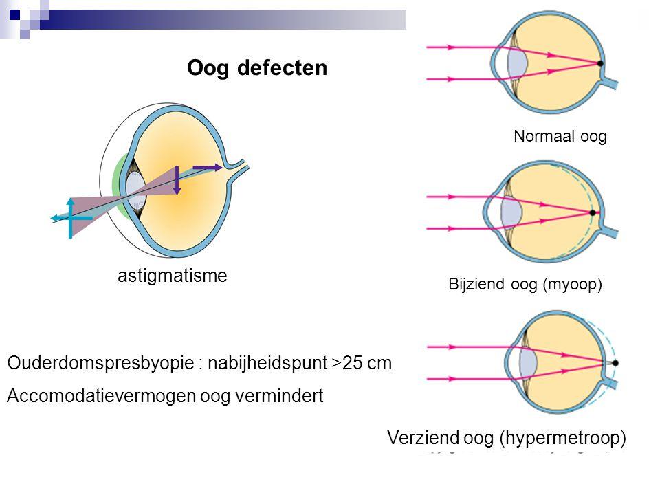Oog defecten astigmatisme