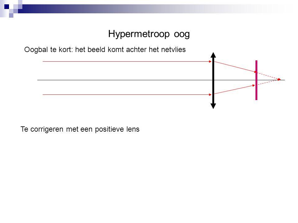 Hypermetroop oog Oogbal te kort: het beeld komt achter het netvlies