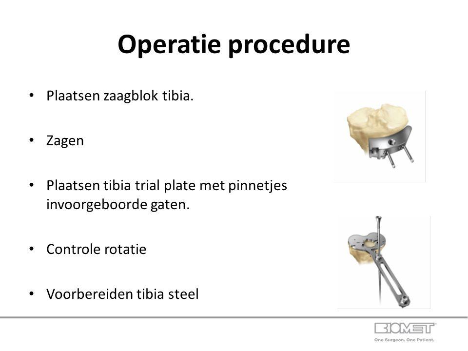Operatie procedure Plaatsen zaagblok tibia. Zagen
