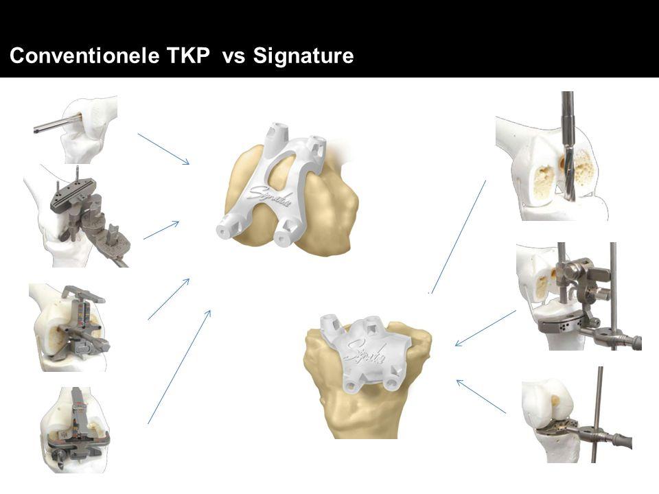 Conventionele TKP vs Signature