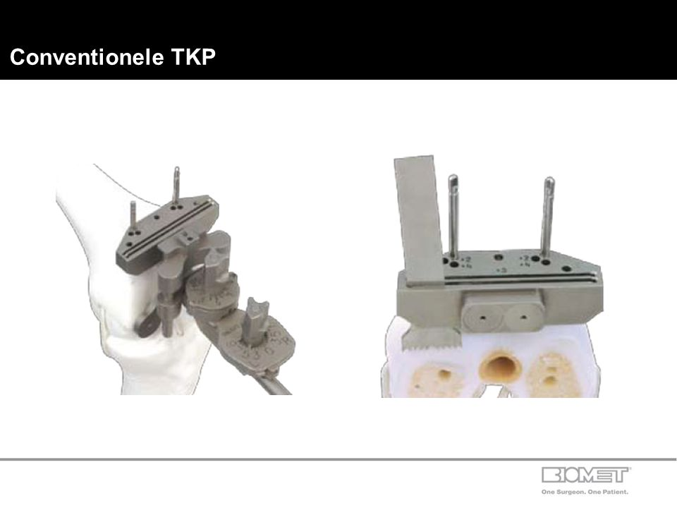 Conventionele TKP 20/09/2012 Spring Drill pin 32–422401