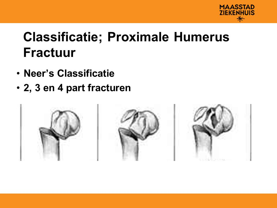 Classificatie; Proximale Humerus Fractuur