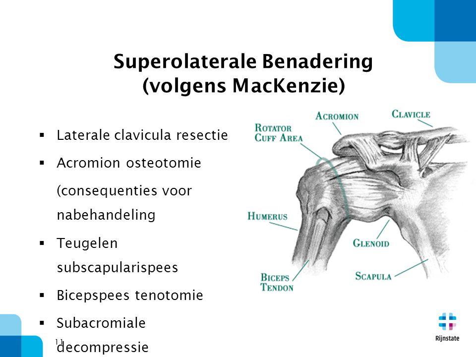 Superolaterale Benadering (volgens MacKenzie)