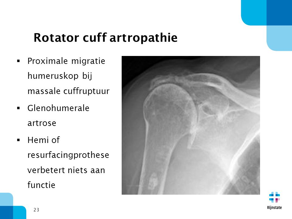 Rotator cuff artropathie