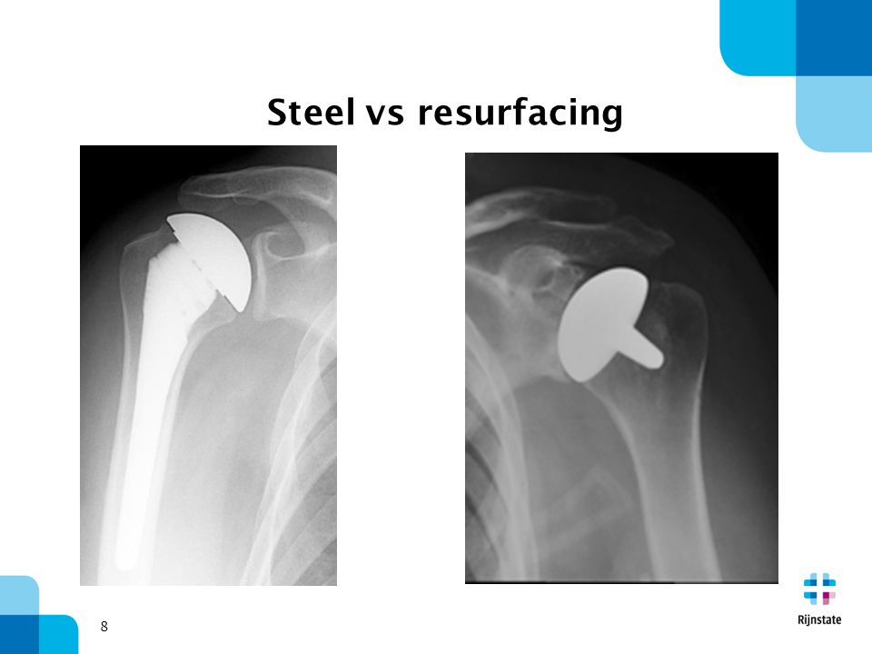 woensdag 5 april 2017 Steel vs resurfacing