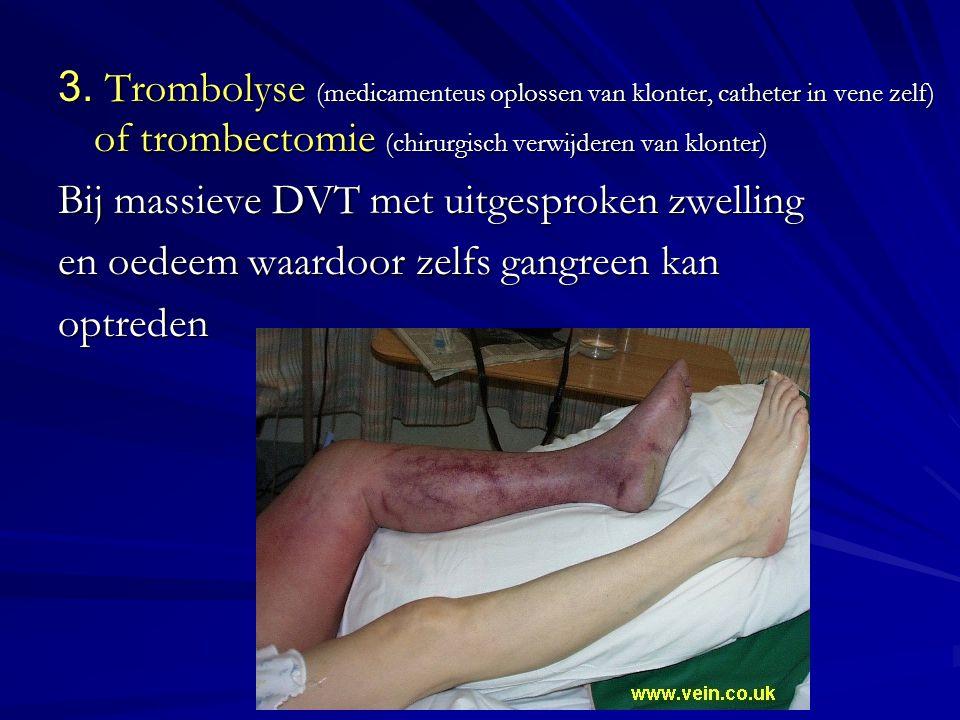 3. Trombolyse (medicamenteus oplossen van klonter, catheter in vene zelf) of trombectomie (chirurgisch verwijderen van klonter)