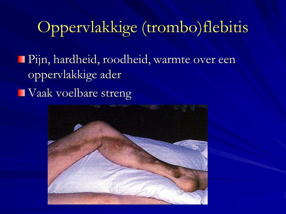 Oppervlakkige (trombo)flebitis