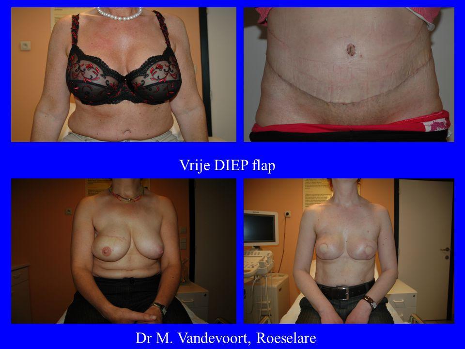 Vrije DIEP flap Dr M. Vandevoort, Roeselare