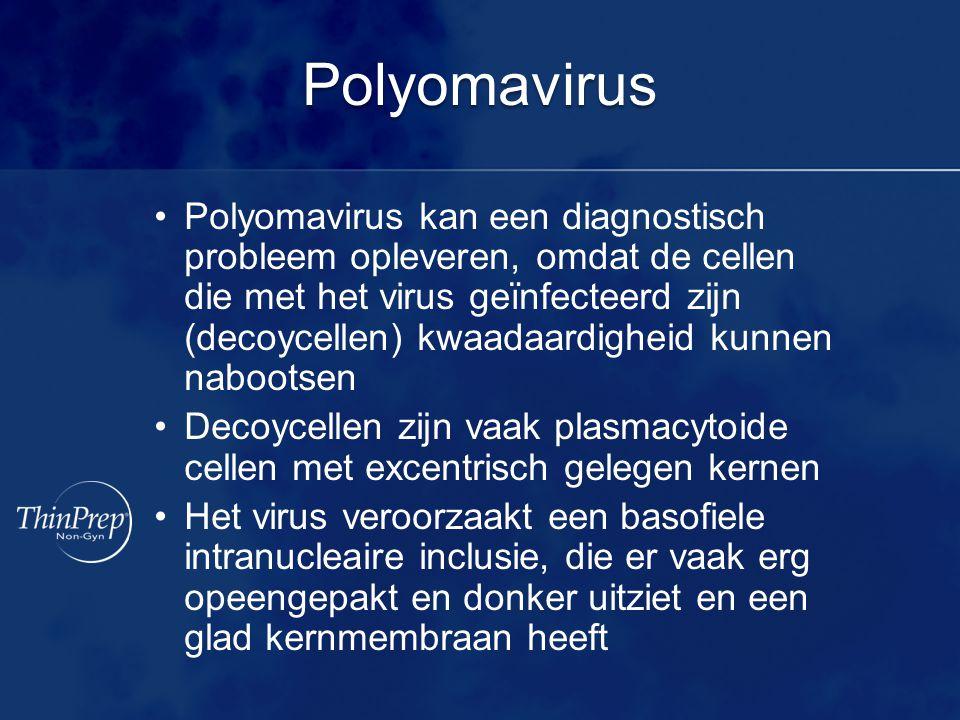 Polyomavirus