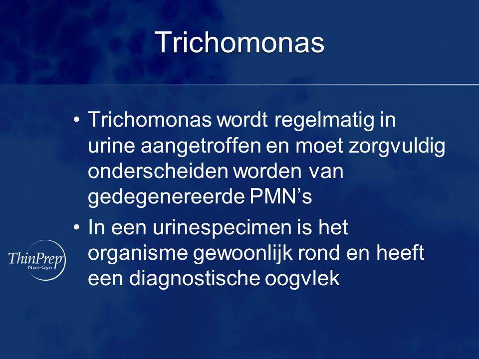 Trichomonas Trichomonas wordt regelmatig in urine aangetroffen en moet zorgvuldig onderscheiden worden van gedegenereerde PMN's.