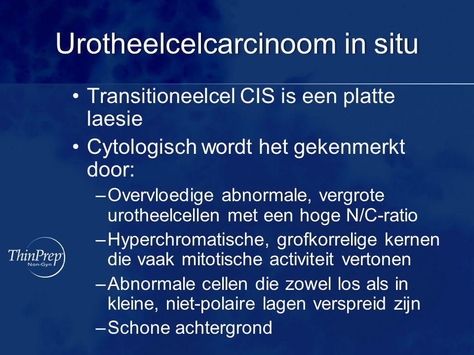 Urotheelcelcarcinoom in situ