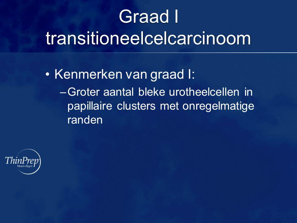 Graad I transitioneelcelcarcinoom