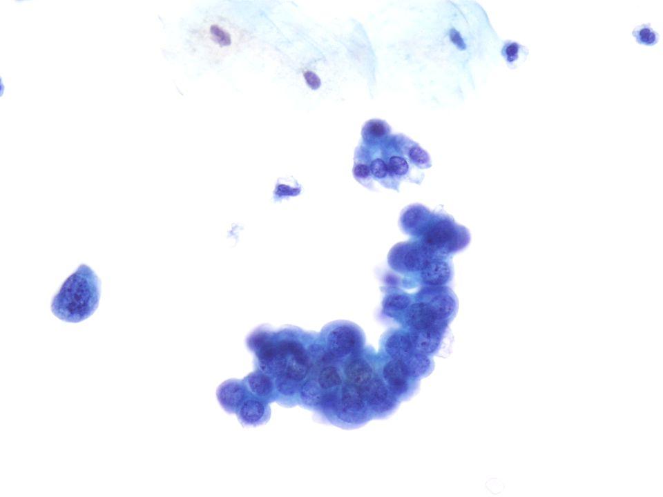 Deze 40X vergroting van een biopsie waarvan bevestigd is dat het een TCC van graad II betreft, vertoont een onregelmatige cluster van bleke urotheelcellen (rechts) naast een pleiomorfere losse cel met een hoge N/C-ratio links.