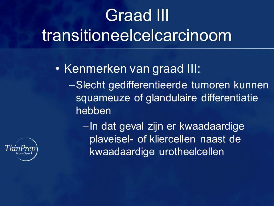 Graad III transitioneelcelcarcinoom