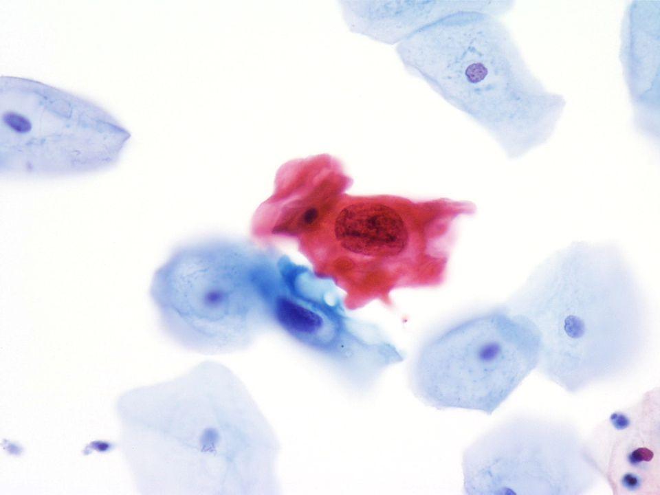 40X opname van atypische plaveiselcellen in een uitgeplast urinemonster van een vrouwelijke patiënt.
