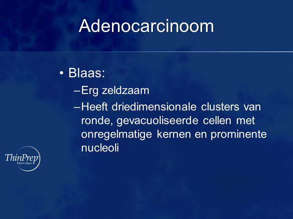 Adenocarcinoom Blaas: Erg zeldzaam