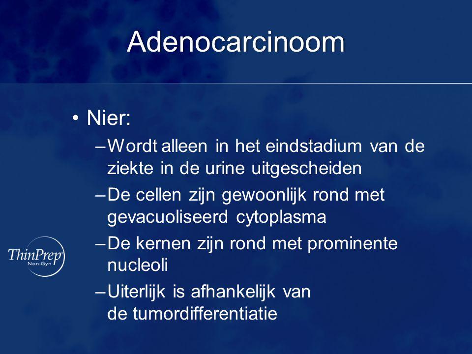 Adenocarcinoom Nier: Wordt alleen in het eindstadium van de ziekte in de urine uitgescheiden.