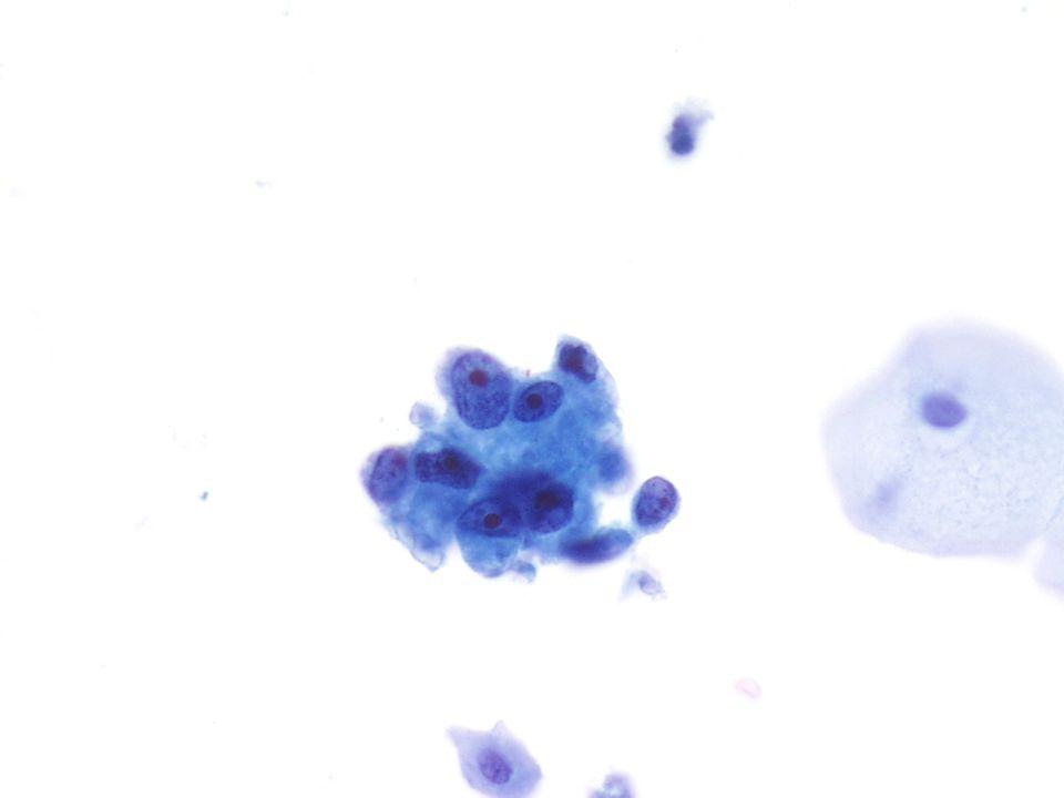 Sterk vergrote (40X) opname van een adenocarcinoom, NOS van uitgeplaste urine.