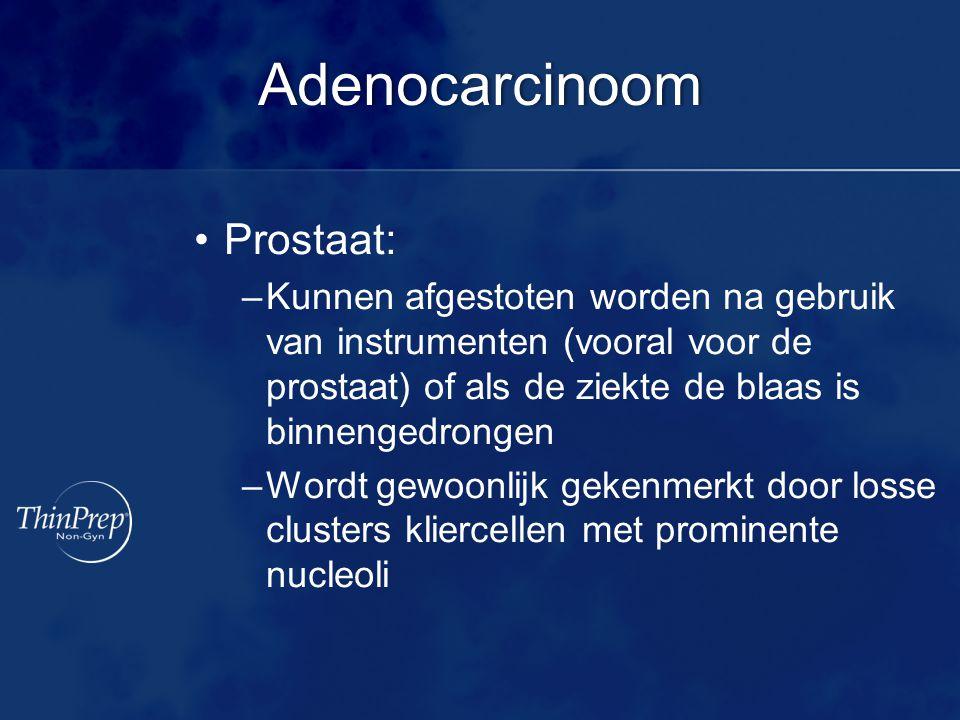 Adenocarcinoom Prostaat: