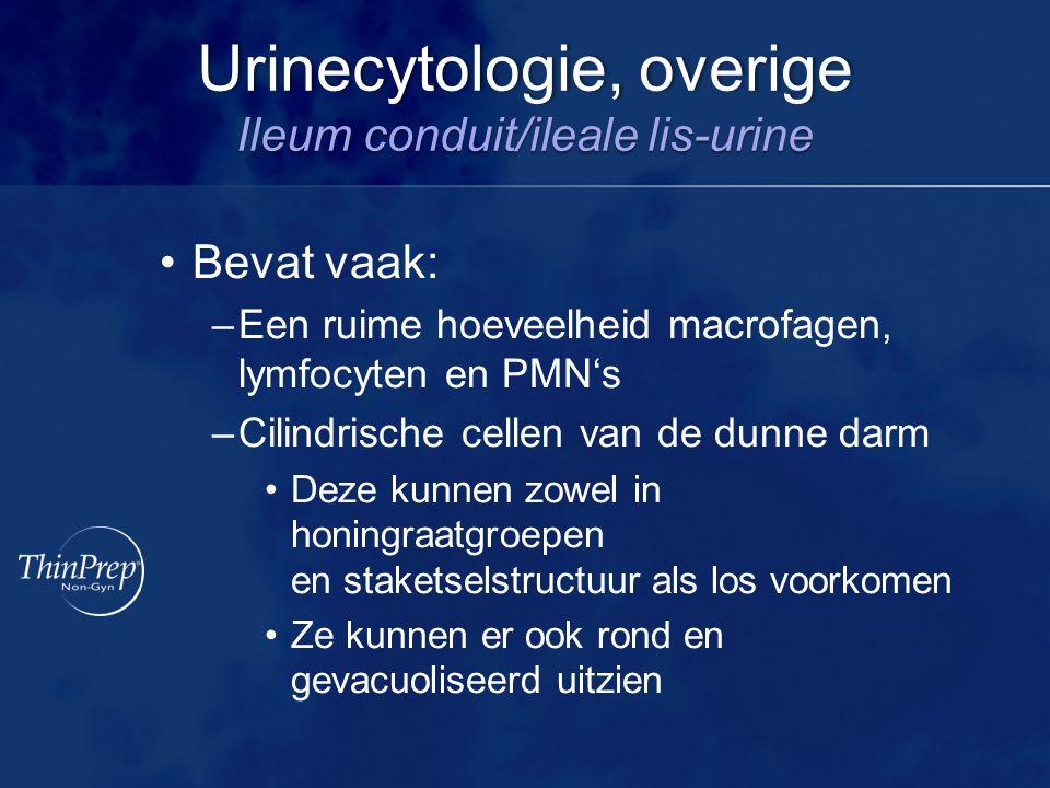 Urinecytologie, overige Ileum conduit/ileale lis-urine