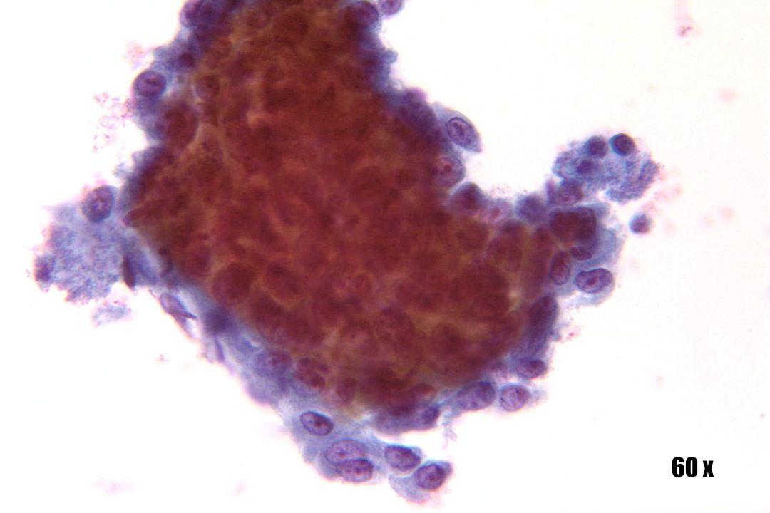 Plaveiselcelcarcinoom •Dikke maar platte laag of plaque van kwaadaardige cellen met rafelige randen die kenmerkend zijn voor SCC.