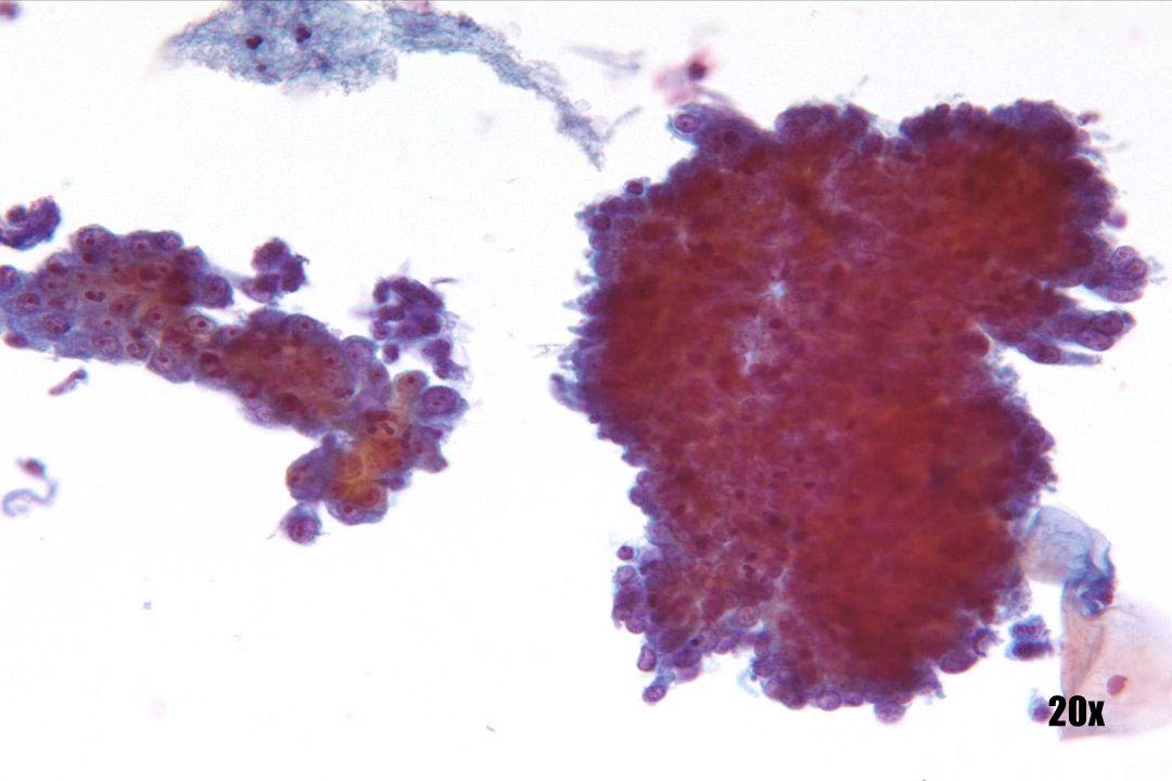 Endocervicaal adenocarcinoma en adenocarcinoma in situ •Endocervicaal adenocarcinomacellen in 3D-cluster met geschulpte gemeenschappelijke groepsgrens aan de linkerkant. Kernen zijn groot, maar het chromatine is onopvallend. Macronucleoli zijn duidelijk zichtbaar. •Aanliggend is een platte laag adenocarcinoma in situ dat er vlakker en drukker uitziet. Individuele cellen in de laag vertonen kenmerken van endocervicale celoorsprong. Kernen zijn altijd hyperchromatisch. •Identificatie van de precursor-AIS steunt de endocervicale oorsprong van de maligne cellen.