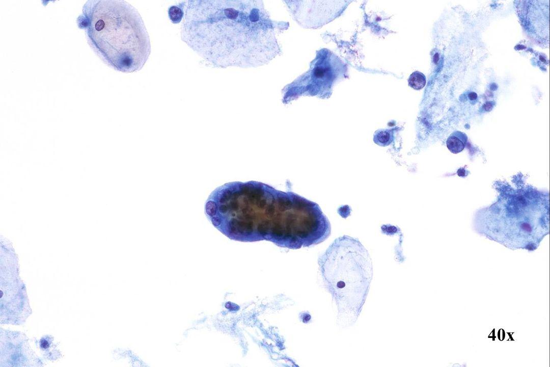 Endometriaal adenocarcinoom •Papillair cluster van uniforme, bleek uitziende kwaadaardige epitheelcellen. Merk op dat er een cytoplasmatische bobbel uit de bovenkant van de groep steekt. Cytoplasma bobbels worden vaak aangetroffen op onlangs afgestoten endometriale celclusters, die zowel goedaardig als -zoals in dit geval - kwaadaardig kunnen zijn. •Enkele abnormale cellen van endometriale oorsprong op 2 uur vertonen excentrisch gelegen kernen. •Rijp hormonaal patroon.