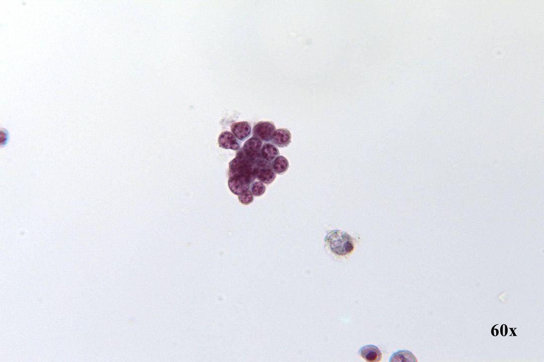Endometriaal adenocarcinoom •Cluster van kleine cellen met minimaal cytoplasma. •Klassiek endometrioïde differentiatie.