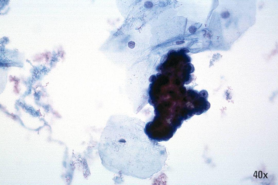 Endometriaal adenocarcinoom •Papillaire groep vertoont scherptediepte, hoge N/C-ratio en prominente nucleoli.