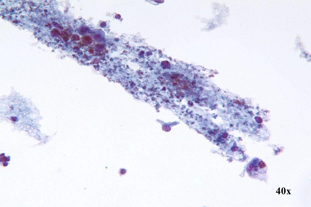 Endometriaal adenocarcinoom •Een andere presentatie van waterig exsudaat en endometriaal materiaal dat traditioneel gezien wordt in de achtergrond van een endometriaal adenocarcinoom.