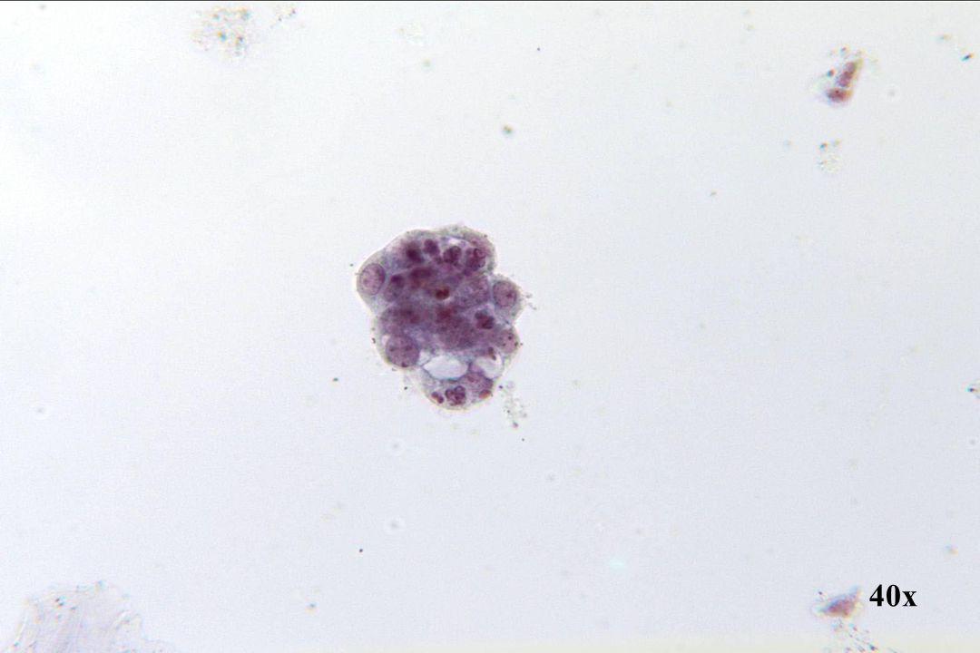 Endometriaal adenocarcinoom •Gedegenereerd cluster cellen pleit meer voor endometriale oorsprong dan voor kleincellig SCC, omdat degeneratie het gevolg kan zijn van cellen die worden afgestoten en enige tijd later terloops worden verzameld. •SCC-cellen worden rechtstreeks geschraapt en zijn daardoor meestal goed geconserveerd. •Insnoering van polymorfen wordt vaker gezoen met een adenocarcinoom. Mucineuze vacuolisatie is ook kenmerkender voor een adenocarcinoom.