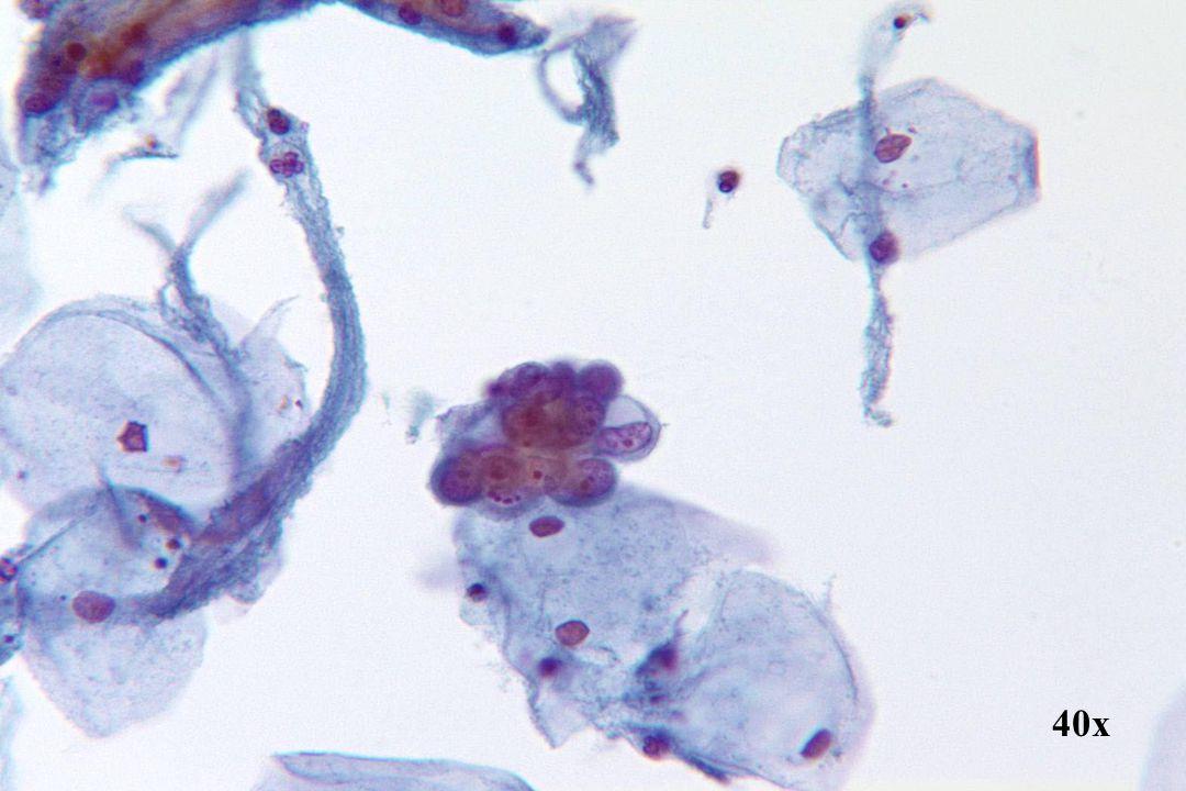 Endometriaal adenocarcinoom •Geïsoleerde 3D-cluster met geschulpte randen en mucineuze vacuolisatie.