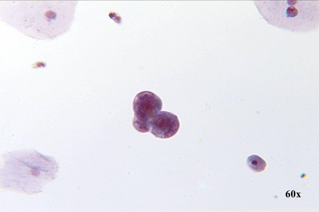 Endometriaal adenocarcinoom •Kleine cellen vertonen cellen door cellen zijn ingesnoerd, hetgeen niet karakteristiek is voor kleincellig SCC.