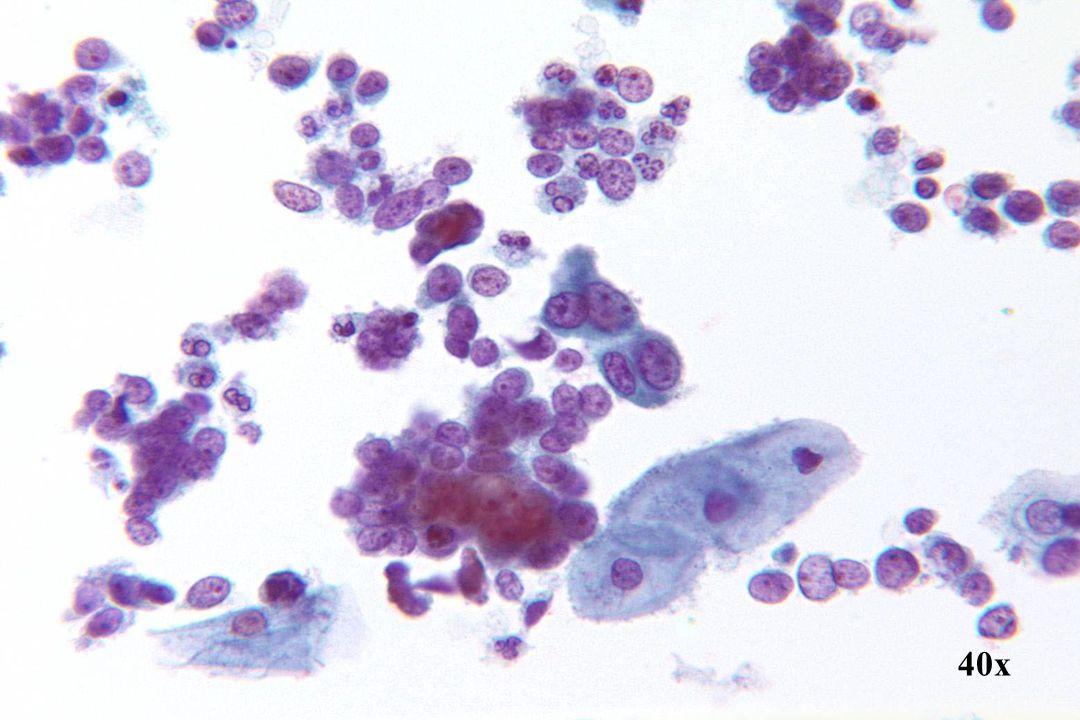 Kleincellig SCC •verschillende abnormale cellen die los, in clusters en in lagen voorkomen. Uniform goed geconserveerde cellen die op een rechtstreeks geschraapte laesie duiden. Hoewel de meeste cellen een minimale rand cytoplasma hebben, vertonen sommige cellen overvloediger cytoplasma (centrum) met squameuze differentiatie, d.w.z. compact homogeen. •De cellen hebben prominente en onregelmatige nucleoli, zijn vaak in de periferie gelegen en verschillen in aantal, vorm en grootte. •Grof en onregelmatig chromatine. •Nu en dan wordt apoptose waargenomen dat eenzelfde patroon heeft als materiaal dat aangetroffen wordt met een endometriaal adenocarcinoom.