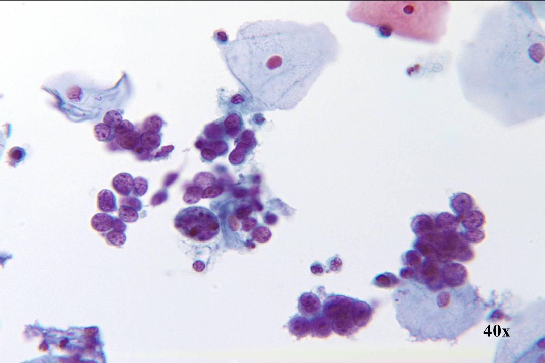 Kleincellig SCC •Lagen en groepen los cohesieve, kleine, kwaadaardige cellen •Weinig cytoplasma •Meerdere prominente, onregelmatige nucleoli •Grof en onregelmatig chromatine