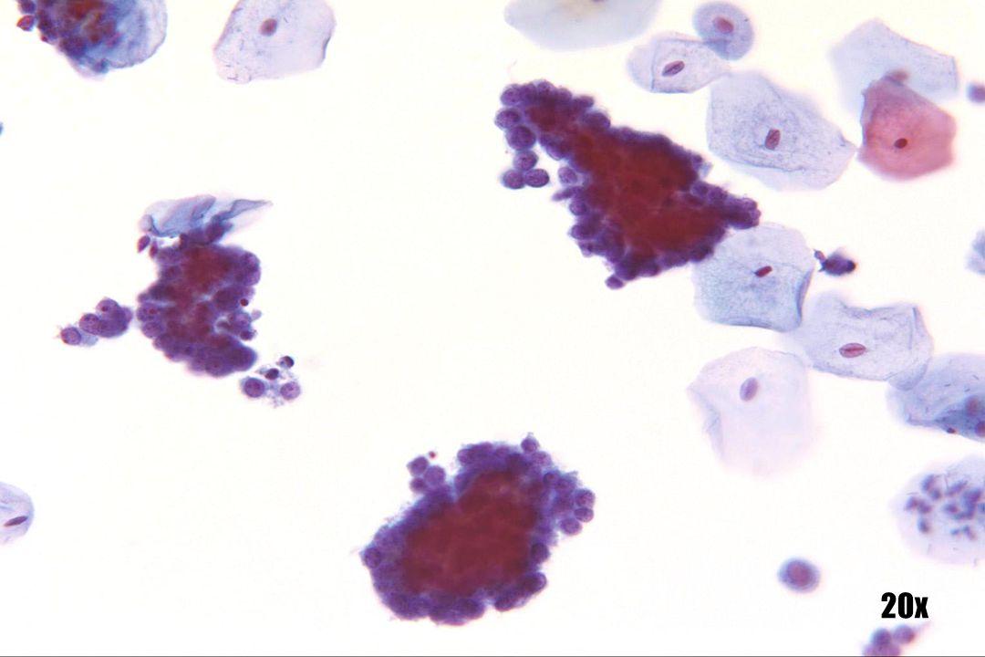 Kleincellig SCC •Aggregaten en lagen met een structuur die de structuur van endometriale cellen nabootst. In de context van het hele glaasje, zijn er echter aanzienlijk meer abnormale cellen met kleincellig SCC dan endometriaal adenocarcinoom.