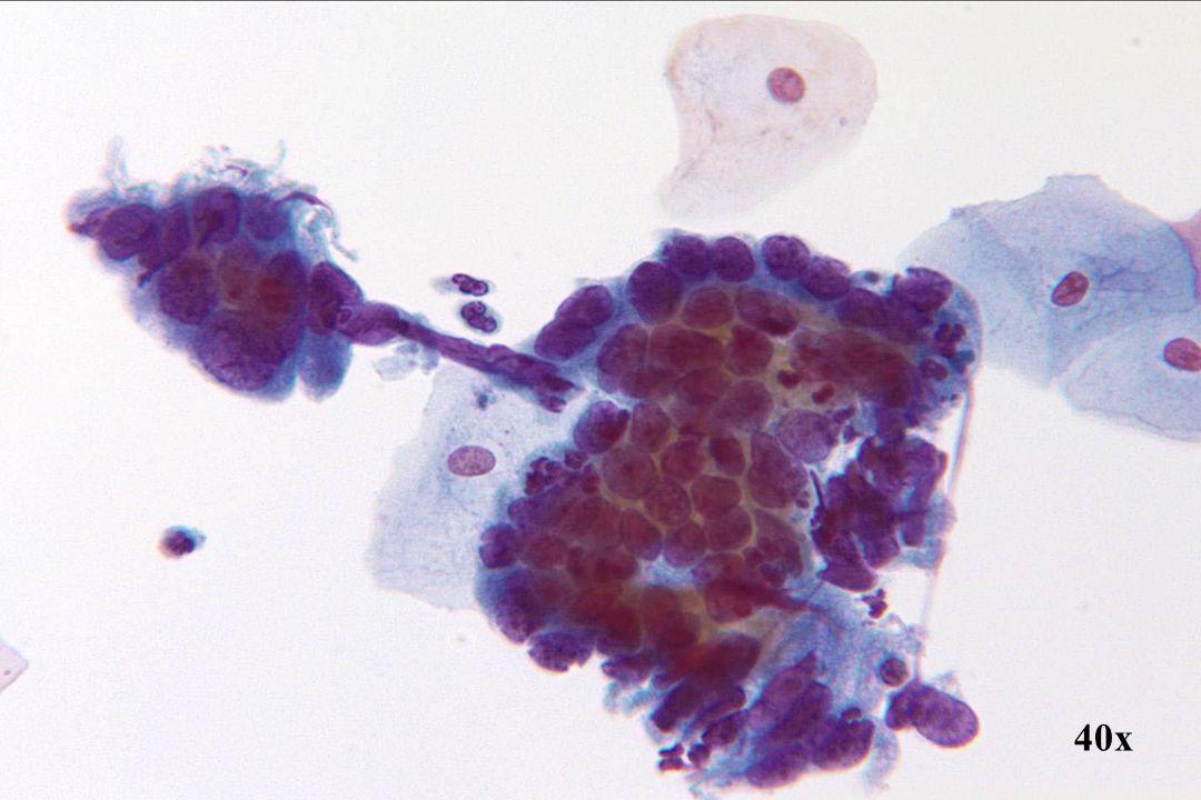 Adenocarcinoom in situ •Ondanks variatie in nucleaire grootte, proberen de kernen tocht de kenmerkende honingraat- en staketselstructuur te vertonen.